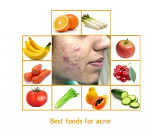 Best Natural Product For Teenage Acne