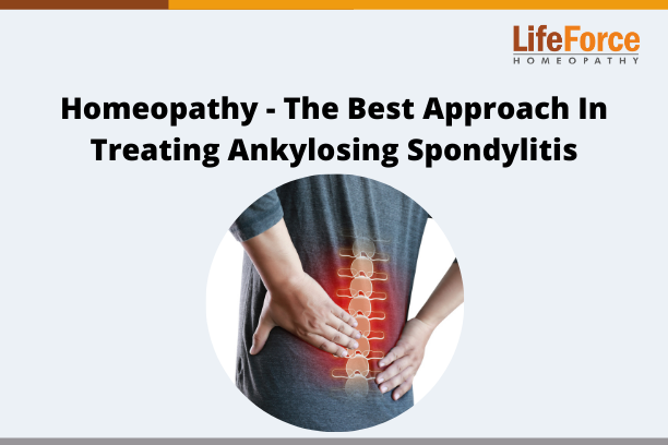 Homeopathy – The Best Approach In Treating Ankylosing Spondylitis