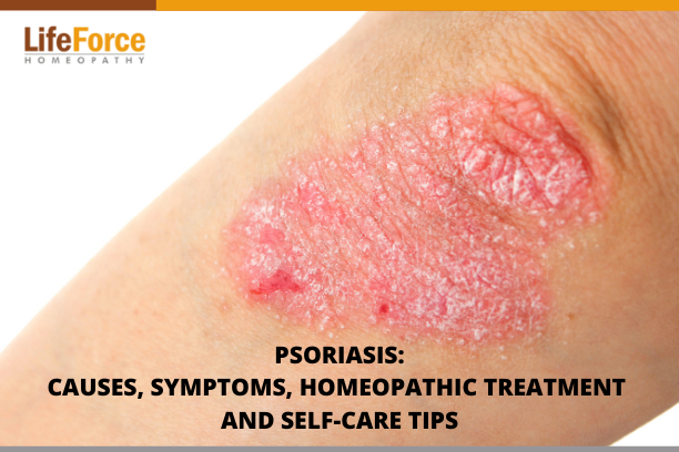 Psoriasis – Causes, Symptoms, Homeopathic Treatment, & Self-Care Tips
