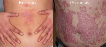 Are You Caught In A Maze Differentiating Psoriasis And Eczema?