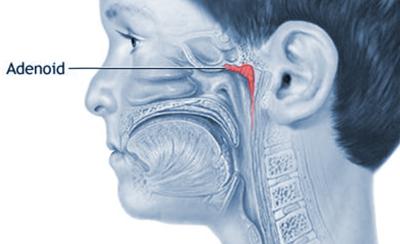 Symptoms of Enlarged Adenoids in Children