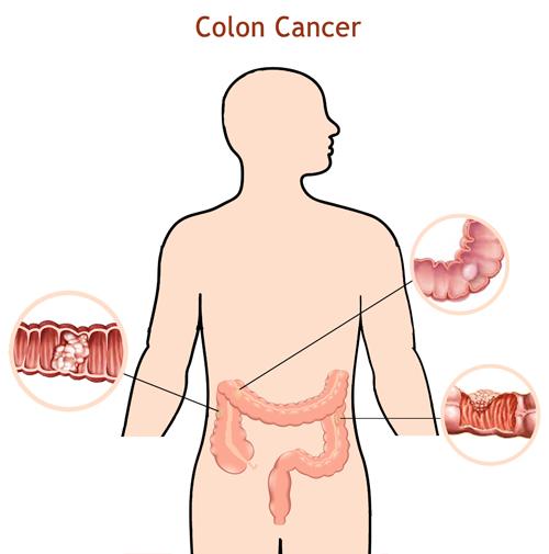 Colon-cancer-treatment