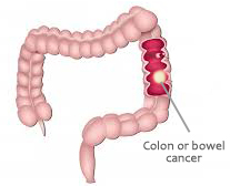 What Are The Symptoms Of Bowel Cancer?