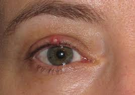 Home Remedies For The Treatment Of Chalazion