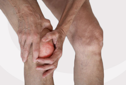 How to cope with Osteoarthritis?
