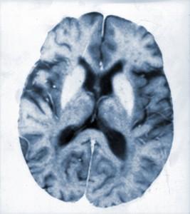 hallervorden spatz disease
