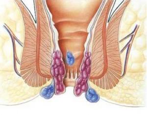 Hemorrhoids-(Piles)
