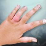 Juvenile-arthritis