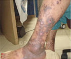 Is cortisone really helpful in treating Lichen Planus?