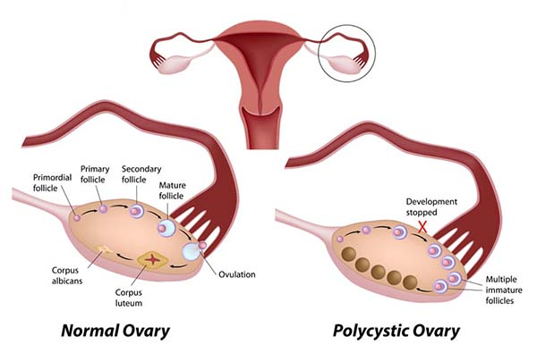 Do I Need To Worry About My PCOS?