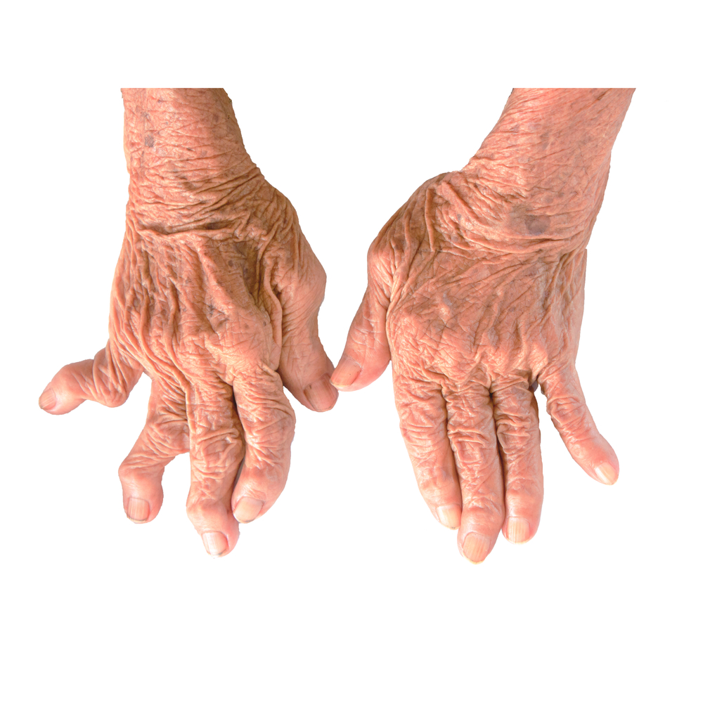 early signs of rheumatoid arthritis in young adults