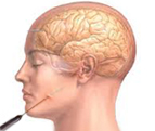 Surgical options for Trigeminal Neuralgia