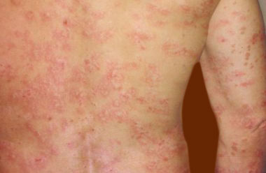Treatment for Guttate Psoriasis