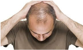 What Are The Reasons Behind My Baldness?