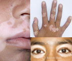 Vitiligo on mucocutaneous junctions