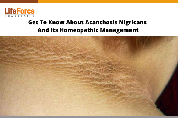 Get To Know About Acanthosis Nigricans And Its Homeopathic Management