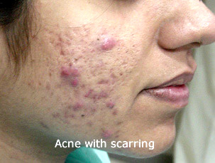 7 Best Homeopathic Medicines For Acne Treatment