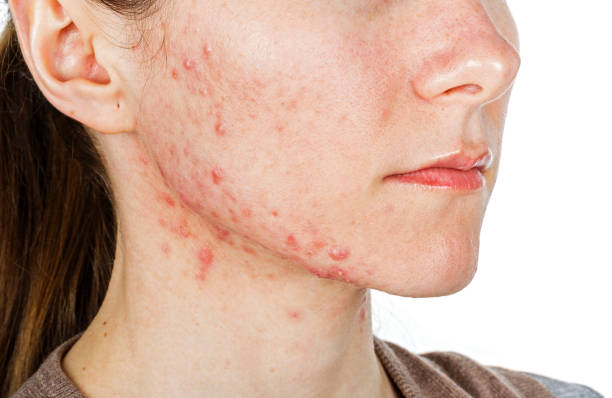 Why Are Teenagers More Affected By The Problem Of Acne?