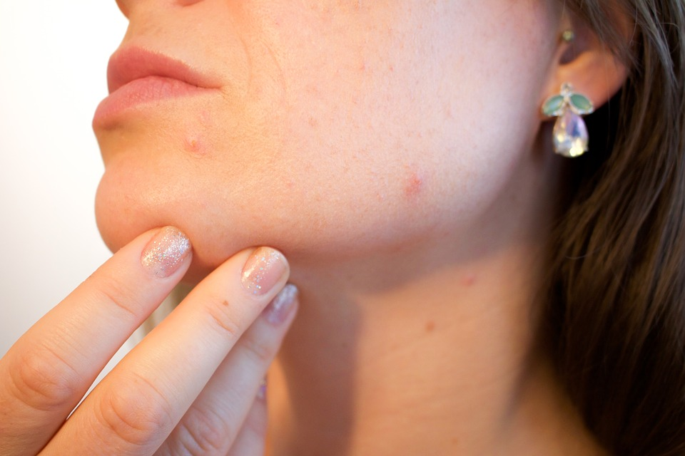 Does Acne Worsen In Summer?