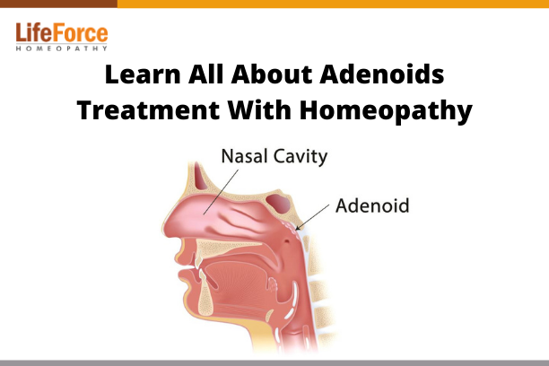 Learn All About Adenoids Treatment With Homeopathy