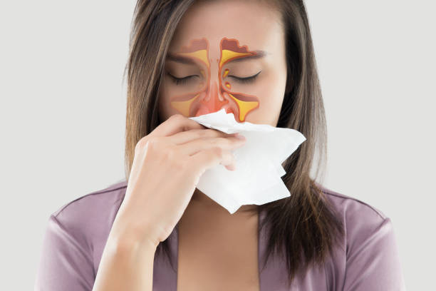 Allergic Rhinitis: How To Deal With Nose's Nuisance