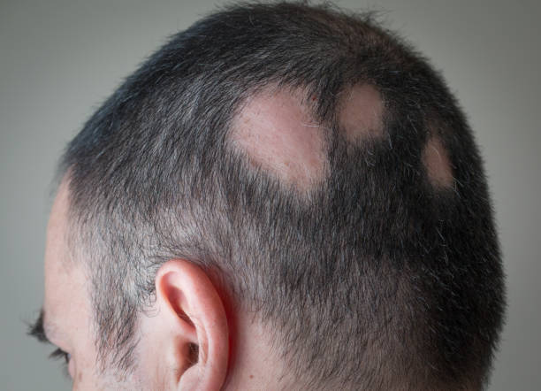 7 Best Homeopathic Remedies For Alopecia Areata