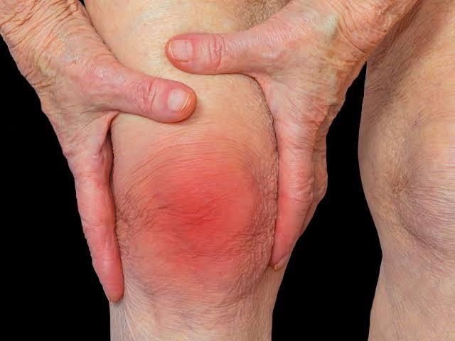 Management Of Chronic Pain Of Arthritis