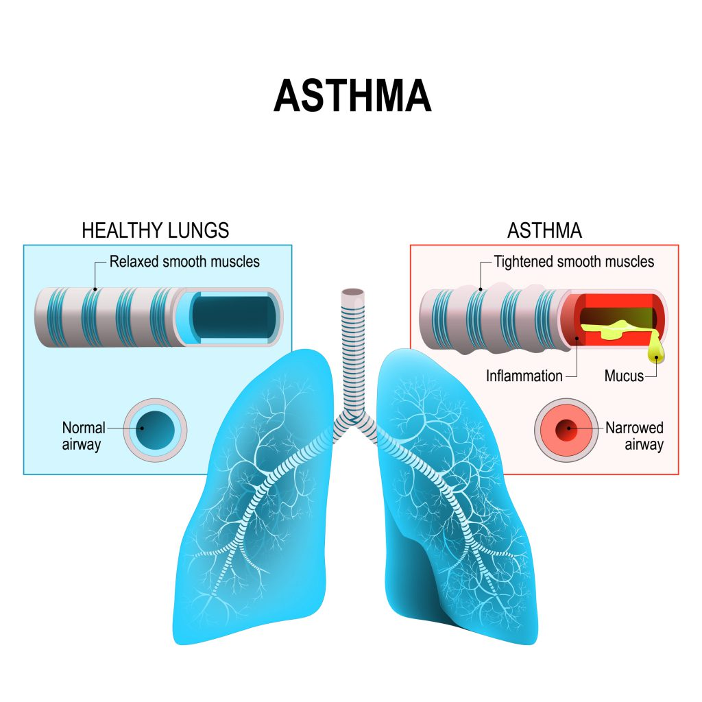 Precautions you must take if your child is suffering from asthma