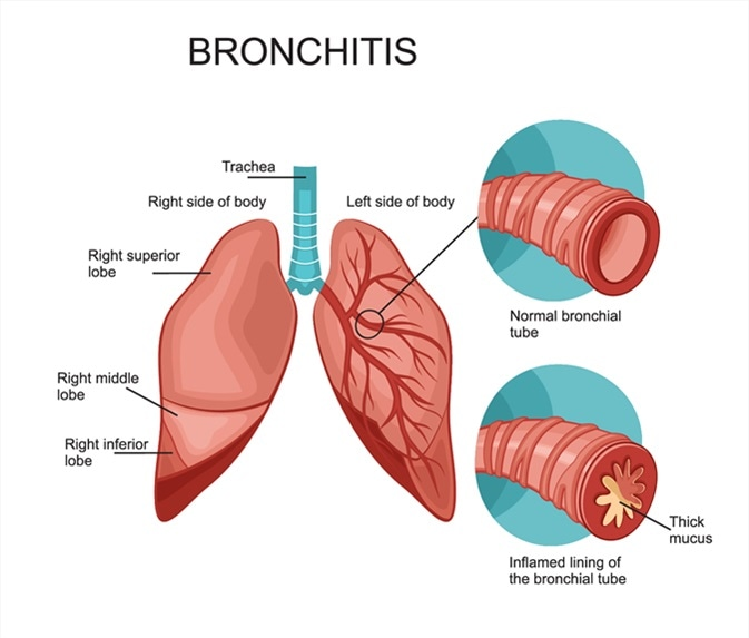 Learn How To Take Extra Precaution Against Bronchitis During Winter