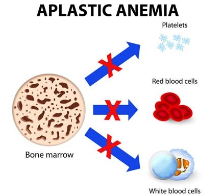 Aplastic Anemia In Children. What Has Homeopathy To Offer?