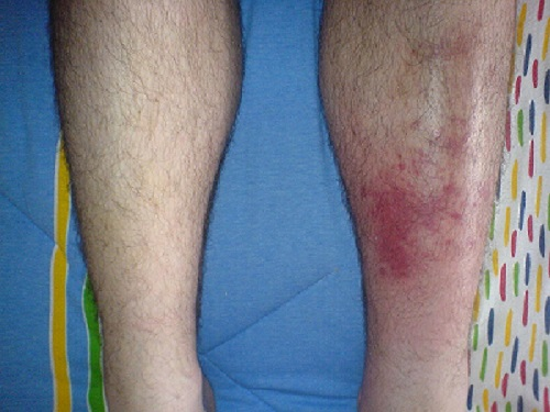 9 Early Signs Of Cellulitis