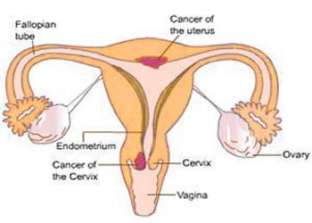 Surviving Cervical Cancer