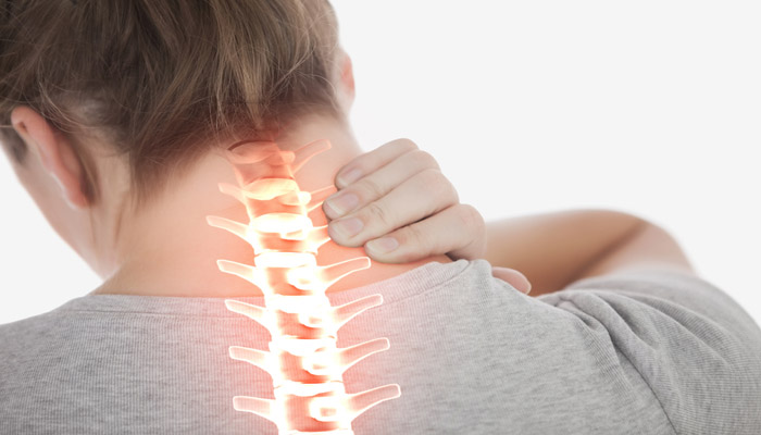How To Prevent Cervical Spondylitis