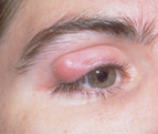 Top Five Homoeopathic Remedies For Chalazion