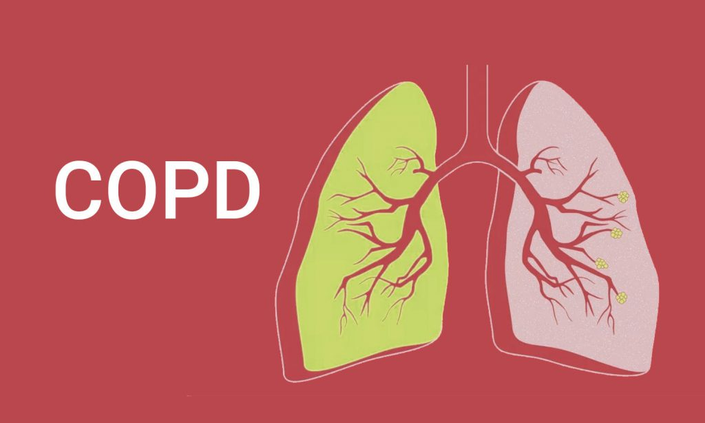 All That You Need To Know About COPD (Chronic Obstructive Pulmonary Disease)