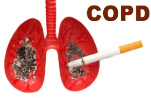 what is copd | help your copd symptoms with exercises, Skeleton