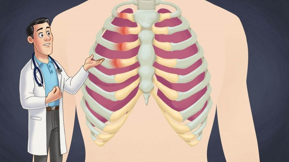 Costochondritis and Me