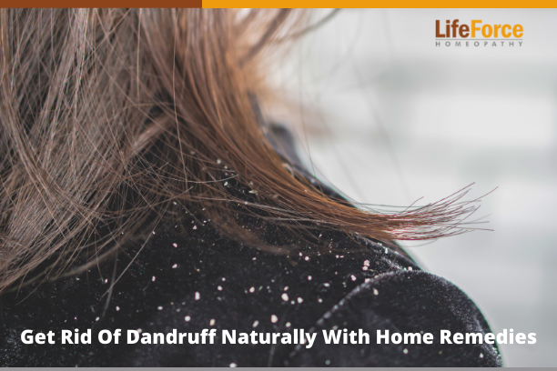Get Rid Of Dandruff Naturally With Home Remedies