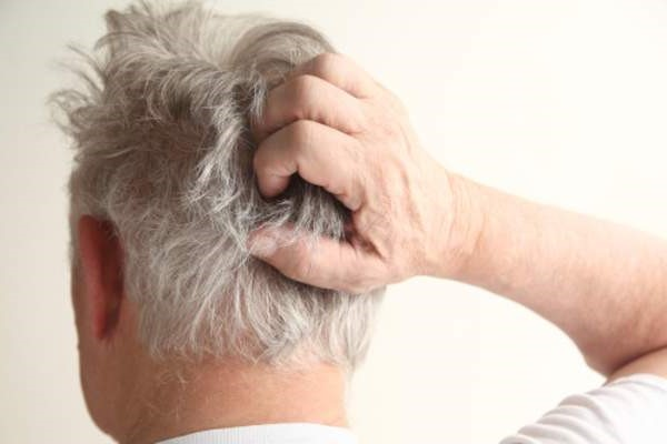 Difference Between Scalp Psoriasis & Dandruff