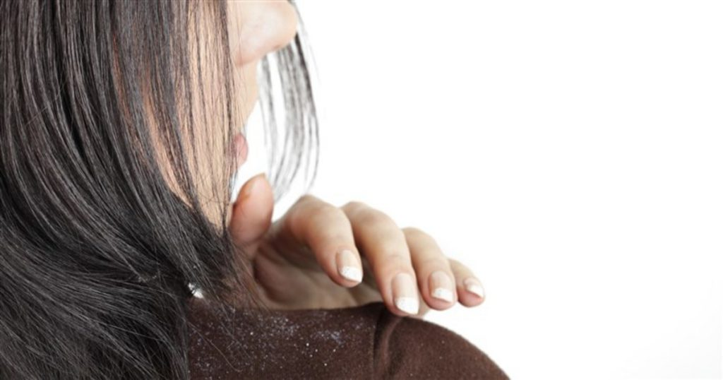 5 Home Remedies To Discard The Disgusting Dandruff