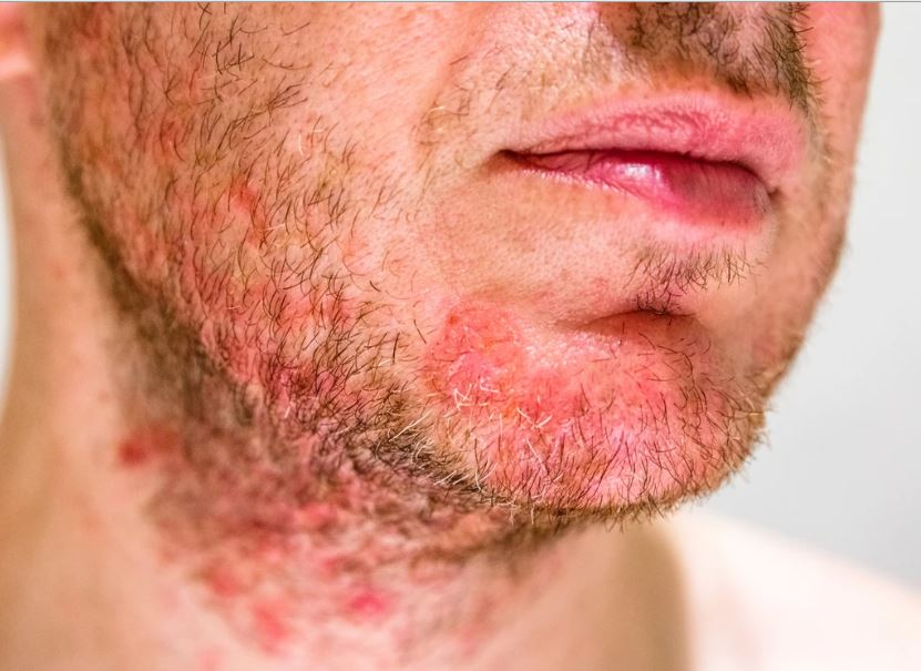 All About Seborrheic Dermatitis That You Should Know
