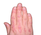 dermatomyositis-ico