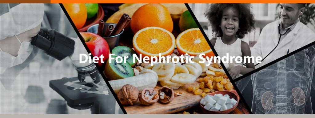 Diet For Nephrotic Syndrome Patients To Follow