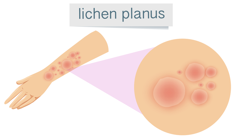 Homeopathic Treatment Is The Best For Lichen Planus
