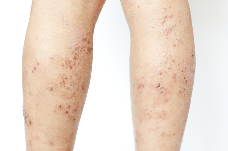 What Is Xerotic Eczema And How Homeopathic Treatment Can Treat It?
