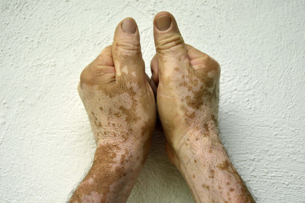 What Increases Your Risk For Developing Vitiligo?