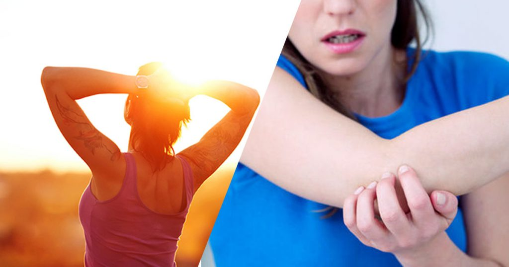Does Sunlight Exposure Help Eczema?