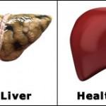 fatty-healthy-liver
