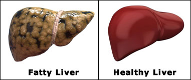 how can i get rid of my fatty liver home solutions for a fatty liver