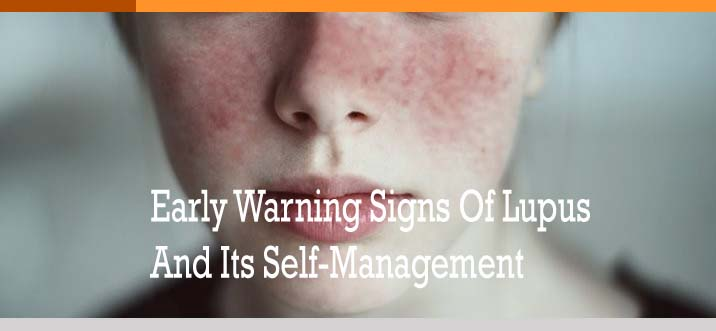 Early Warning Signs Of Lupus And Its Self-Management